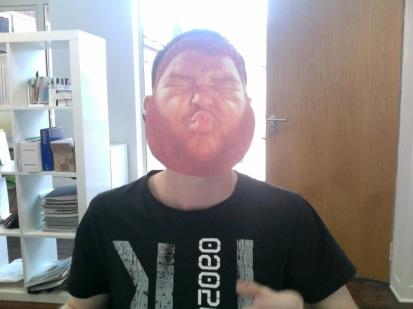 Nick' s face transplant